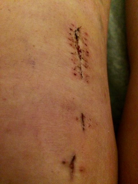 acl repair surgery staples gone