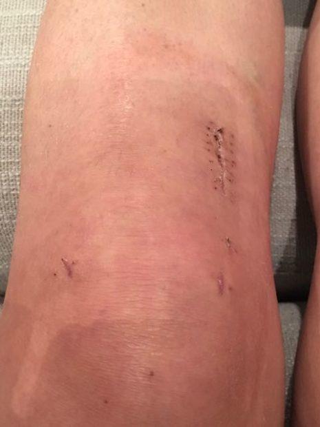 acl repair surgery week 3