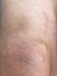 ACL Surgery scar 8 months (1)