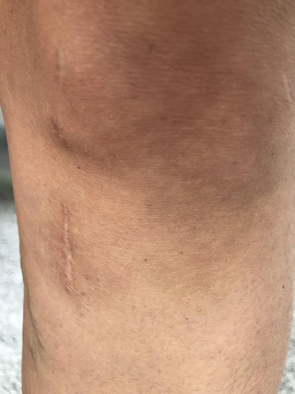 ACL repair surgery scar