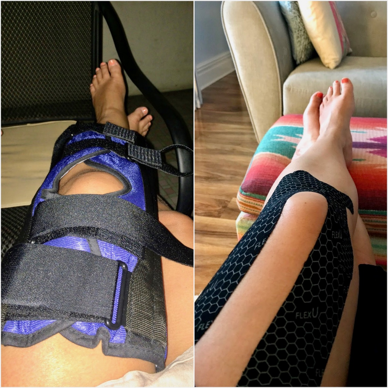 Injured knee before ACL surgery and not much better 2 yers later