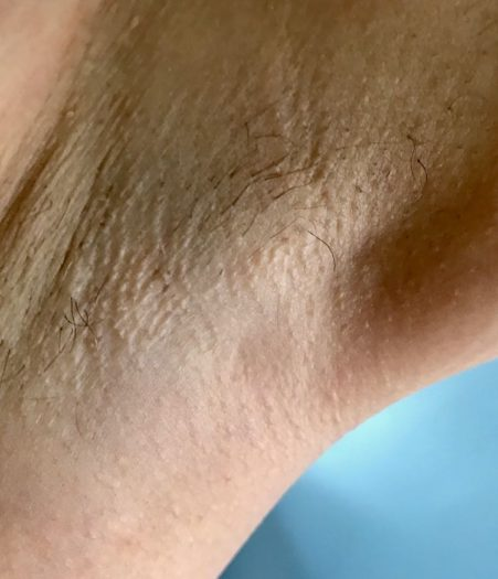 Does IPL at home work - Philips Lumea Review 2 hair close up