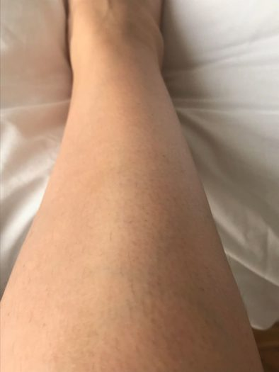 Does IPL at home work - Philips Lumea Review leg