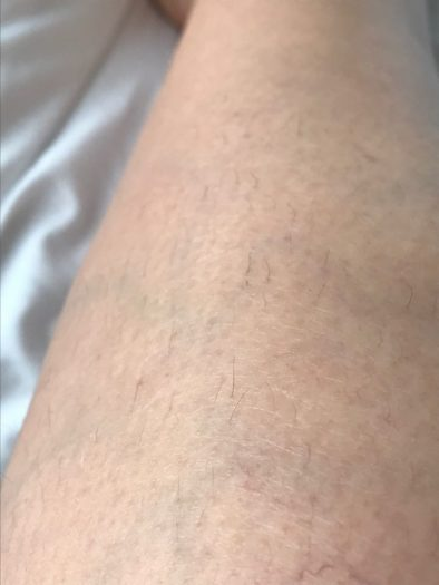 Does IPL at home work - Philips Lumea Review leg hair